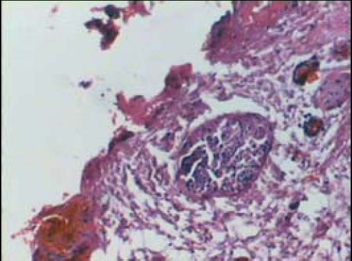 Histological changes in the sciatic nerve proximal to the heart at 1 week post-injury (hematoxylin-eosin staining, light microscope, × 40).Retraction balls and lymphocyte infiltration are observed.