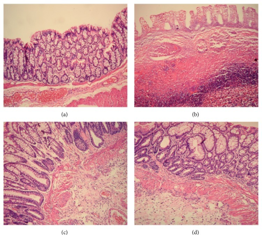 The histological observation of rats in each group. Hematoxylin-Eosin staining method, ×200. (a) Normal control; (b) ulcerative colitis; (c) UC with herb-partitioned moxibustion; (d) UC with salicylazosulfapyridine.