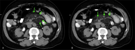 Initial CT with (A) mesenteric panniculitis and (B) mesenteric lymph nodes.