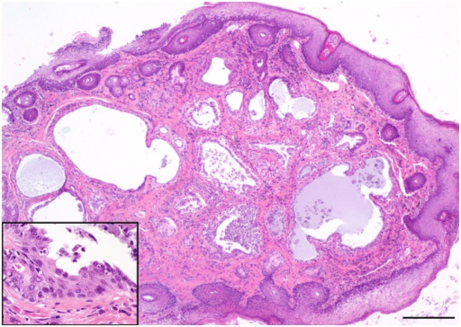 Photo of hematoxylin and eosin—stained histopathology slide of ceruminous gland dysplasia in a Santa Catalina Island fox (main image scale bar = 200 μm, inset = 50μm).