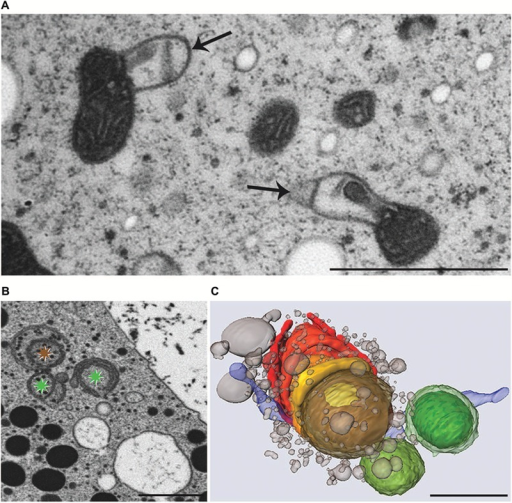 Transmission electron microscopy micrographs of mitochondria (A), FIB-SEM image of degrading dictyosome (B) and 3-D reconstruction of degrading dictyosome from FIB-SEM series (C) after exposure of Micrasterias to KCl. (A) Mitochondria with balloon-like protrusions of outer membrane and condensed matrix. (B) The colored asterisks indicate parts of the dictyosome that are reconstructed in (C). (C) The reconstruction shows that the dictyosomal cisternae form balls during degradation. Remnants of dictyosomal cisternae in red, ER in blue, small vesicles represent degradation products of cisternae. Scale bars are 1 μm. (B,C) Reprinted with permission from Lütz-Meindl et al. (2015), Copyright© 2015 Royal Microscopical Society.