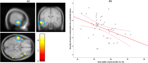 VBM results.(a) VBM result for accidental harm condition at group random effects analysis. Maps are thresholded at p(uncorrected) <0.001, k > 10, for illustrative purposes. The left anterior superior temporal sulcus (l-aSTS) is highlighted in the blue circle. The color bar denotes t-values. (b) A scatter plot illustrating the negative linear association between the grey matter volume (GMV) in l-aSTS (ρ(47) = −0.547, 95% CI [−0.726, −0.296], p < 0.001, n = 49, two-tailed) and the severity of moral condemnation of accidental harm, accounting for nuisance variables. The solid lines indicate a linear fit to the data, while the curved lines represent mean 95% confidence intervals for these lines. Extracted grey matter volume data presented in figures are non-independent of the statistical test used to find effect at this region and thus should not be used for effect-size estimates97. They are included here only as a visual aid for interpretation of results. Abbreviation - VBM: voxel-based morphometry.