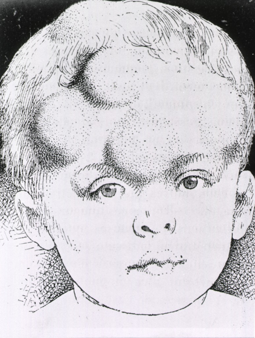 <p>Head of a young child with hereditary syphilis, cranial lumps (gummata) clearly visible.</p>