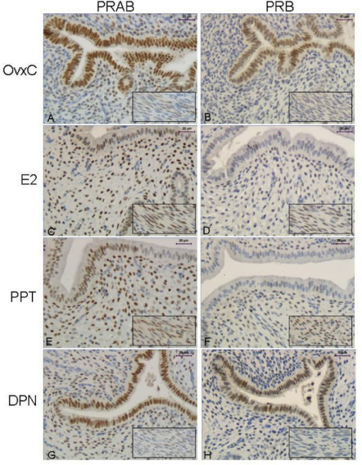 Immunohistochemistry experiment 3. Representative images of immunohistochemical results from the agonist treated rats, PRAB in left columnand PRB in right column. Representative images are shown from a rat in each treatment group as follows: OvxC (A,B), E2 (C,D), PPT (E,F) and DPN (G,H). The insert shows the myometrium from the same uterus. Magnification bar 30 μm.