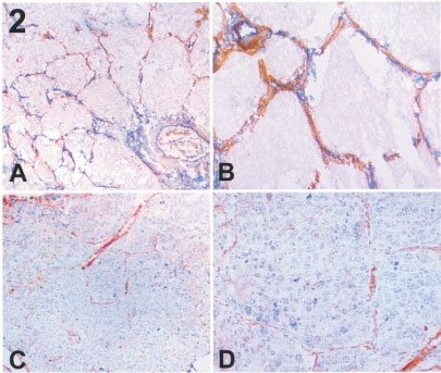 A non-angiogenic tumour (frozen sections). (A) (×100) (low magnification) and (B) (×400) double immunostaining for LH39 (in brown) and CD31 (in blue); no counterstaining was done. All the vessels express LH39 in the basal membrane. (C) (×100), (D) (×400) Immunostaining for αVβ3 (in brown); the nuclei are counter stained with haematoxilin (blue). A variable positivity on the endothelial cells is present as seen in normal lung (Figure 1).
