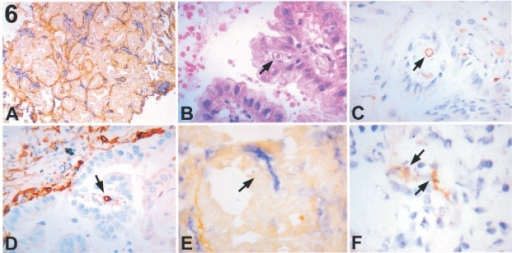 Early papillary pattern (frozen sections). (A) (×40) Double immunostaining for LH39 (in brown) and CD31 (in blue). No counter staining was done. The alveolar pattern appears preserved throughout the tumour. (B) (×100) Haematoxilin and Eosin (C) (×100) CD31 (in brown, the nuclei are counter stained with haematoxilin (blue)) and (D) (×100) CD34 (in brown, the nuclei are counter stained with haematoxilin (blue)). Within these micropapillae a small vessel (arrow), positive for CD31 and CD34, is present. (E) (×100) Double immunostaining for LH39 (in brown) and CD31 (in blue). No counter staining was done. A new vessel CD31 positive but LH39 negative (arrow) is present in the stalk of this micropapilla. (F) (×100) Staining for αVβ3 (in brown). The nuclei are counter stained with haematoxilin (blue). An αVβ3 positive microvessel (arrow) within an early papilla.
