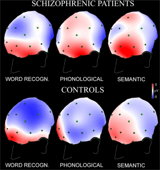 Spline maps of scalp electrical activity (3/4 left frontal view evidencing areas involved in phonological elaboration) measured in the first second of the inter stimulus interval (iCNV), for the three linguistic tasks.Patients in the upper panel, controls in the lower panel. Negativity, in blue, indicates activation of cortical layers in this language-related CNV paradigm, positivity, in red, indicates relative inhibition.