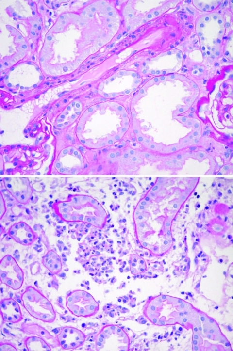 Acute tubular necrosis in a renal biopsy specimen of the patient. Magnification ×40.
