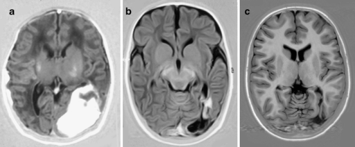 MRI and IR axial view obtained on day 8, at 3 months, and at 11 years. A large parieto-occipital hemorrhage is seen in the neonatal period (a). The hemorrhage has almost completely resolved by 3 months, resulting in a small cavity (b), which is still present at 11 years (c). Outcome is within the normal range