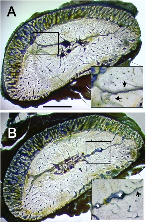 Targeted remodeling of bone microdamage.Photomicrographs of calcified transverse sections of ulna at 60% of bone length, from proximal to distal [37]. Fatigue loading induced microcrack formation and targeted remodeling. (A) Branching microcracks can be appreciated histologically in fatigue-loaded bones. (B) Targeted remodeling resulted in resorption space formation around the areas of microcracking. Bones were bulk-stained with Villanueva bone stain. Black arrows indicate fatigue damage; white asterisks are labeling resorption spaces. Bar = 0.5 mm.