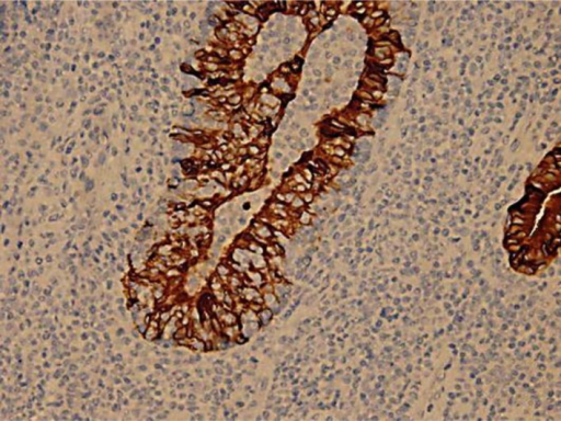 Image highlights lymphoepithelial lesion; immunohistochemistry stain with cytokeratin (Dako; ×400).
