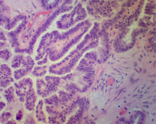 H+E stained sections of right ovary showing borderline serous tumor. Courtesy of Dr. Sybil Irwin, Department of Pathology, Moses Taylor Hospital, Scranton, PA.