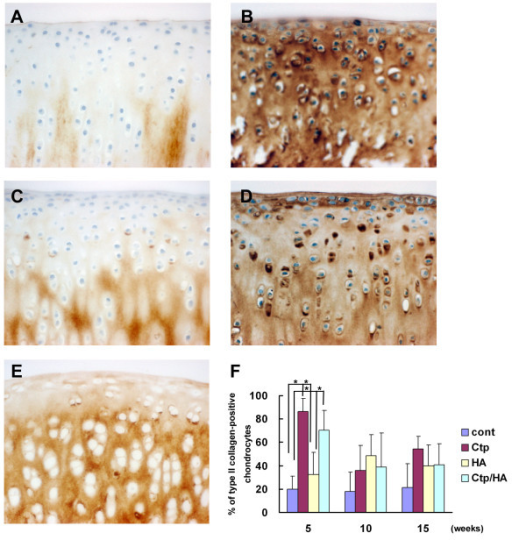 Type II collagen expression during osteoarthritis development. Immunohistochemical findings for type II collagen in the medial femoral condylar cartilage from (A) a control knee, (B) a collagen tripeptide (Ctp)-treated knee, (C) a hyaluronan (HA)-treated knee and (D) a Ctp/HA-treated knee 5 weeks after surgery (original magnification ×400). (E) Appearance of type II collagen (×400) staining in the medial femoral condylar cartilage from a normal rabbit knee. (F) Population of type II collagen-positive chondrocytes in medial femoral condylar cartilage of each group 5, 10 and 15 weeks after surgery. Counted area was 6.76 × 104 μm2. Data presented as mean ± standard deviation (*P <0.05).