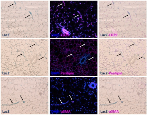 PPARγ CS1-5_LacZ positive cells express markers of adipose progenitors.Paraffin-embedded serial sections of X-gal stained subcutaneous WAT derived from PPARγ CS1-5_LacZ line 1 transgenic mice were analyzed by immunohistochemistry. Note that LacZ positive cells in transgenic fat pads express mural/endothelial/adipose progenitor cell markers (CD29, SMA), but not perilipin (mature adipocytes). Arrows point to several examples of the same LacZ positive cells in all serial sections, so that the overlap of markers can be evaluated.