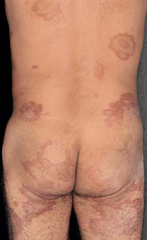 Borderline leprosy: polymorphic appearance of the lesions