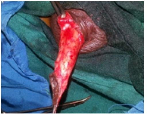 Tissue Penis 9