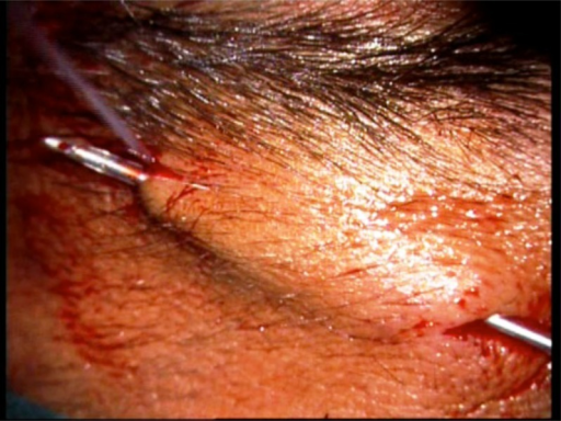 The 18 G intravenous catheter is passed from the central incision to the brow incision marking.