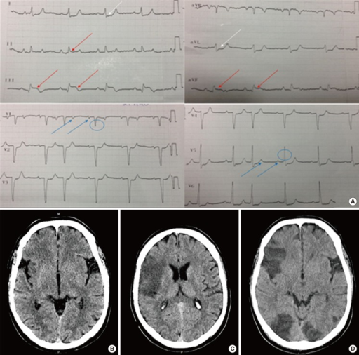 (A) Electrocardiogram showing sinus rhythm, with 2:1 conduction block; two p waves (blue arrows) and one QRS wave (blue circle) are shown. ST elevation is visible in leads II, III, and aVF (red arrows), with ST depression in leads I and aVL (white arrows). (B) Brain CT showing early signs of acute stroke (insular ribbon sign and hemispheric sulcus effacement) in the right MCA territory. (C) Established stroke in the cortical territory of the right MCA. (D) Additional bilateral ischemic stroke in the posterior territory.