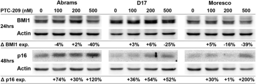Effect of PTC-209 on BMI1 and p16 protein expression in canine OSA cell lines.Western blot showing decreased BMI1 protein expression and increased p16 protein expression in Abrams, D17, and Moresco canine OSA cell lines after 24hrs (BMI1) and 48hrs (p16) of PTC-209 treatment. Protein band densities were calculated for each sample, values were normalized to actin, and then shown as a percent change in expression relative to vehicle control.