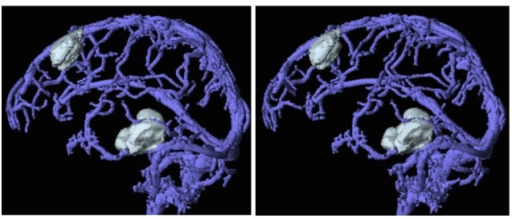 Three-dimensional evaluation of brain tumors and their surrounding veins.A merged image of a Gd-enhanced T1-image and MR venography showing the relationship between tumors and surrounding veins. The stereo view.