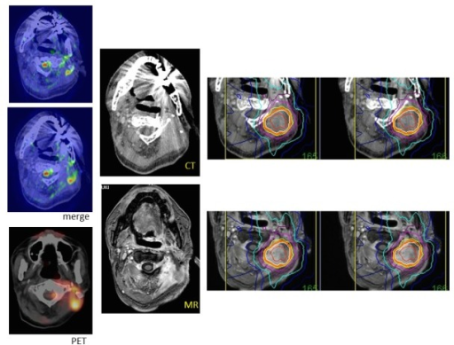 A recurrent neck cancer.MR diffusion images merged to thin-sliced CT axial sections showing a recurrent lesion in the neck, in the same locations as indicated by the PET scan (left line). The Gd-enhanced MR image is fused to CT and used for dose planning (center). The target of hypofractionated radiotherapy is demarcated based on the merged images.