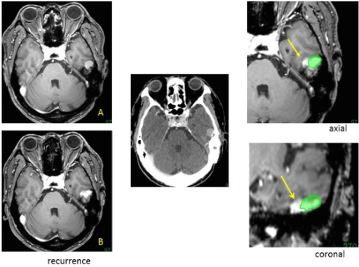 Detection of marginal recurrence.A follow-up MR image after treatment showing recurrence (B) compared with the image before treatment (A). Image fusion using thin-sliced CT (based on the image from radiosurgery, center) enabled us to detect the treated part of the tumor (green) and the recurrent tumor from the medial margin of the tumor (arrows) on identical axial and coronal images (right). The treated part decreased in volume, as is shown in follow-up MR images fused with the image before radiosurgery.