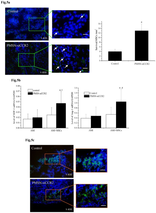 PMSNs-siCCR2-PEI enhanced the efficiency of MSC transplantation and attenuated myocardial remodeling (n=12). (a), The surviving MSCs in the infarct zone following cell therapy are shown by representative immunofluorescent staining for EdU (5-Ethynyl-2'-deoxyuridine, green) and visualization of the nuclei (DAPI, blue) within the infarct zone 3 days after cell transplantation. Scale bar=50 μm. (b), SDF-1 and Ang-1 mRNA levels in the infarct zone after MSC transplantation. The data represent the mean±SD, *p<0.05 vs. the corresponding group at 1 day post-AMI; #p<0.05 vs. the control group at 3 days after cell transplantation. (c), Representative image of immunofluorescent staining for TUNEL (Alexa Fluor 488, green) and DAPI in the infarct border zone 3 days after AMI; the number of TUNEL-positive cardiomyocytes was calculated. Scale bar=50 μm. (d), The vascular density was determined by immunofluorescent staining for wheat germ agglutinin (WGA, red), endothelial cells (staining of CD31, green) and DAPI (blue) in the infarct zone at 21 days after MSC transplantation. (e), Confocal image of representative immunofluorescent staining for cardiac myosin heavy chain (eFluor® 660, red) and DAPI (blue) staining of the nuclei within the infarct zone at 21 days after MSC transplantation. (f), Infarct size at baseline and at 21 days after MSC transplantation, Arrowheads (blue) indicate the diastolic thickness of the LV posterior walls (0.84±0.11 mm vs. 0.61±0.08 mm, p<0.001) over time in the two groups. *p<0.05 vs. the corresponding 1-day-post-AMI group; #p<0.05 vs. the control group at 21 days after cell transplantation.