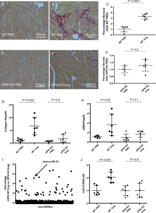 Ang II-induced fibrosis and miRNA expression in osteopontin wild type and knockout mice: Sirius red staining in paraffin-embedded sections of cardiac tissue of osteopontin wild type mice following vehicle-infusion (2 weeks, PBS, A) and Ang II infusion (B) as well as quantification of results (C) and osteopontin knockout mice following vehicle-infusion (D) and Ang II infusion (E) as well as quantification of results (F). Expression of Collagen I (G) and alpha smooth muscle actin (α-SMA, H) mRNA following Ang II or vehicle infusion. A global miRNA screen in hearts of osteopontin wild type and osteopontin knockout mice following Ang II infusion (I). MiR-21 expression in osteopontin wild type and knockout animals (J). n = 6 animals per group and analysis.