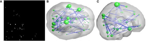 Inter-regional resting-state functional connectivity. (A) shows the matrix of which the entries indicate FCs with significant group difference (U-test, p < 0.01) A 3D rendering of the FCs, 50 in total, is shown on (B,C). The diameter of a node is proportional to the number of identified FCs involving that node and the top five nodes are: right paracentral lobule (degree = 6), left superior temporal gyrus (degree = 5), left superior temporal pole (degree = 5), left paracentral lobule (degree = 4), and right cuneus (degree = 4).