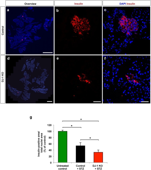 DJ-1 is required to reduce loss of beta cell mass following treatment with MLDS.(a,d) Representative fluorescence microscopy images of pancreatic sections from 16 weeks-old male control and DJ-1 KO mice following MLDS treatment, stained for cell nuclei (DAPI) and beta cells (insulin). Scale bars, 0.5 mm. (b,c,e,f) LSM images of pancreatic islets in sections of pancreata from male control (b,c) and DJ-1 KO mice (e-f) after MLDS treatment, stained for cell nuclei (DAPI) and beta cells (insulin) (b,e). Merged images (c,f) are also shown. Scale bars, 50 μm. (g) Morphometric analyses of relative beta cell area from DJ-1 KO and control mice calculated as insulin-positive area per total nuclei area of evenly spaced pancreatic sections. n = 3 mouse pancreata per experimental group. Beta cell area was quantified after four weeks of STZ treatment. For comparison, untreated control/wild type mice without STZ treatment were included. *p<0.05 (One-way ANOVA followed by Tukey´s multiple comparison test). Data are expressed as means ± S.D.