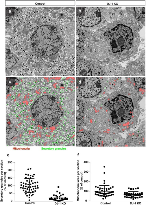 DJ-1 is required for maintaining mitochondrial morphology and number of insulin secretory granules after MLDS treatment.(a,b) Electron micrographs of islets from male control (a) and DJ-1 KO mice (b) after 4 weeks of MLDS treatment. (c,d) Image segmentation into mitochondria (red) and insulin secretory granules (green) using the trainable Weka Segmentation plugin for Fiji/ImageJ. Scale bar, 2 μm. (e,f) Quantification of total number of secretory granules (e) and mitochondrial area per section (f) in control and DJ-1 KO mice. n > 30 images per condition from n = 2 control and n = 3 DJ KO mice. Data are expressed as means ± SD.