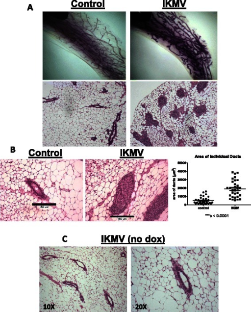 Short term activation of NF-κB in mammary epithelium leads to ducts with filled lumens. Intact 6 week old virgin IKMV and control littermates were dox-treated (2 g/L) for 3 days prior to sacrifice. a Haematoxylin stained whole mounts of control and IKMV glands reveal changes in IKMV ducts. In H&E stained sections (below), we observed a complete occlusion of IKMV ducts throughout the gland. b Increased size of individual IKMV ducts is apparent in 20X images with calibration bars (150 μm). Multiple measurements of duct area across samples are quantified at right (n = 3 control, n = 3 IKMV glands, total of 65 individual ducts were measured; *** p < 0.001). c Double transgenic IKMV virgin females were kept on normal water at the 6 week virgin time point and collected 3 days later along with the dox-treated cohort. Images of H&E stained mammary tissue show ducts of untreated controls have normal morphology, with no lumen-filling or hyperplastic growth (10X magnification at left, 20X at right)