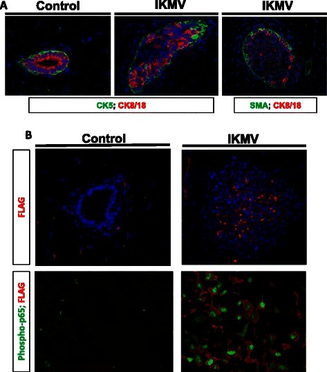 Many cells within aberrant ducts are epithelial, transgene-expressing, and have high levels of NF-κB activation. 6 week old virgin IKMV and control littermates were dox-treated (2 g/L) for 3 days prior to sacrifice. a Immunofluorescent staining of control and IKMV tissue reveals that IKMV ducts are filled with CK8/18 positive luminal epithelium. CK5 and SMA were used as markers of basal/myoepithelium. b Separate staining shows that the FLAG-tagged cIKKβ transgene is expressed by cells within the IKMV hyperplastic ducts (red, FLAG stain). In addition, high magnification images of ductal tissue from IKMV and control littermates confirmed that the transgene is localized appropriately within the cytoplasm of IKMV mammary epithelium and is driving concurrent nuclear localization of phospho-p65 (green)