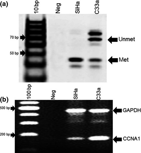 Profile of CCNA1 promoter methylation and expression in SiHa (human papillomavirus-positive) and C33a (human papillomavirus-negative) cells. (a) Methylation status of CCNA1 promoter was detected by methylation-specific PCR using duplex primers for methylated (Met) and unmethylated (Unmet) regions. (b) CCNA1 expression was observed using duplex primers; expression of CCNA1 and GAPDH, as an internal control to normalize CCNA1 expression, were measured. Neg, distilled water as a negative control.