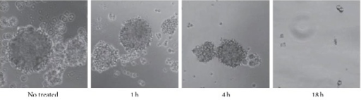Cell neurospheres, photographed at 40 magnification, after 1, 4, and 18 h of exposure to 64Cu radiation. The neurosphere-forming ability of GBM cell lines was progressively abolished.