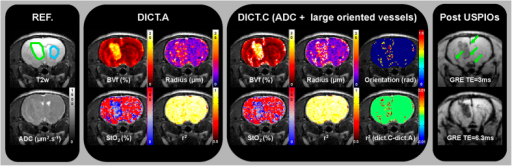 MR images of one representative rat of the 9 L glioma group.The first panel includes T2w and ADC images ('REF' stands for reference maps). Healthy striatum and lesion ROIs are overlaid on the T2w images in blue and green, respectively. The second panel presents the parametric maps obtained with the fingerprinting approach using Dictionary A (ADC value fixed to 800 μm2.s−1). The color-coded parametric maps (BVf, radius, and StO2) as well as the map of the coefficient of determination (r2) are overlaid on the T2w images. The third panel presents these same parametric maps obtained with the fingerprinting approach using Dictionary C, which includes the ADC map and the simulation of large blood vessels. In addition, a map of the orientation of large blood vessels relative to B0 and a map representing the difference between r2 maps obtained using Dictionary C and Dictionary A are shown. The fourth panel shows gradient echo weighted images (GRE) at two different echo times obtained after injection of USPIOs. Green arrows indicate the presence of large blood vessels.