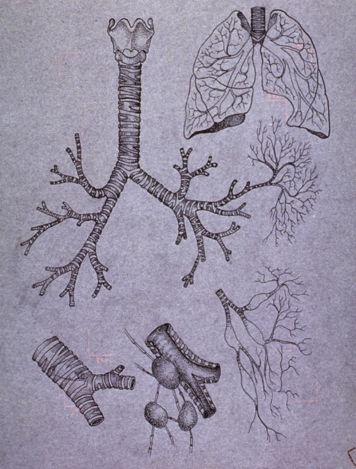 <p>Sectional views of the trachea, including section (lower left) with a safety pin lodged in it; also showing internal branching within the lung, and the development of mediastinal cyst(?) on the trachea.</p>
