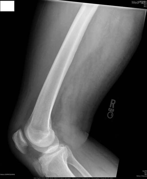 No fracture. Incidental apophyseal nonunion of right tibial tuberosity.