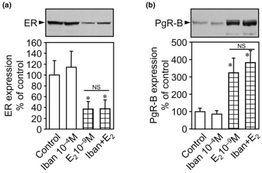 estrogen and progesterone receptor assay Estrogen and progesterone receptor assays in europe documentation of poor  reliability and identification of insufficient microwave antigen retrieval time as .