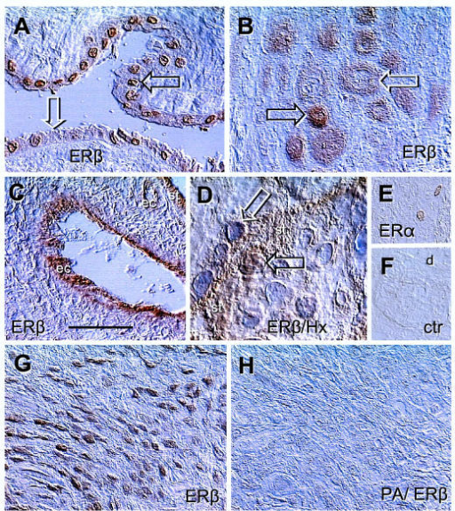 Immunolocalization of ERs in placental membranes and ERβ peptide-absorbed antibody control. [A] Amniotic epithelium with ERβ+ (solid arrow) and ERβ- nuclei (white arrow). [B] Basal plate EVT with high (solid arrow) and diminishing ERβ staining (white arrow). [C] Immunolocalization of ERβ in vascular endothelial cells (ec) of a stem villus. [D] Cytotrophoblast cell merging with ST (st) shows nuclear ERβ immunoreactivity (solid arrow) but ST nuclei are unstained (white arrow). [E] Rarely seen nuclear ERα immunoreactivity in the basal plate decidual cells. [F] Control. [G] EVT in lower magnification, representing ERβ positive control for [H], which is a parallel section incubated with peptide-absorbed ERβ antibody (PA/ERβ). Bar in C = 50 μm for [A–C], 20 μm for [D], and 100 μm for [E-H]. No nuclear counterstain except in panel [D]. Details in text.
