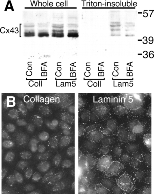 Protein trafficking mediates assembly of Triton insoluble gap junctions in α3-transfected CHO cells on laminin 5. (A)  Western immunoblot for Cx43 of cell lysates from CHO cells  plated on collagen or laminin 5 in the presence or absence of  BFA for 1.5 h. As indicated, α3-transfected CHO cells plated on  laminin 5 and α2-transfected CHO cells plated on collagen were  either solubilized directly with Laemmli sample buffer (Whole  cell) or after extraction with 1% Triton X-100 (Triton-insoluble)  to enrich for gap junctional structures. The cell extracts were immunoblotted with anti-Cx43 rabbit antibody AT2. (B) Cx43 immunofluorescence. α3-transfected cells were plated on collagen  or laminin 5, as indicated. The adherent cells were extracted with  Triton X-100 before fixation and labeled with anti-Cx43 (PNRF)  and FITC-conjugated secondary. Note the extensive punctate  gap junctional fluorescence at cell–cell interfaces present in cells  attached to laminin 5.
