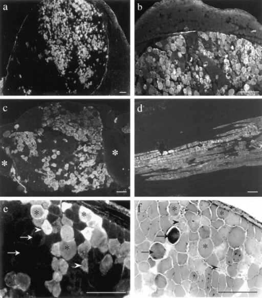 EBD (a–e) and  H&E staining (f) on 7-μm (a,  b, e, and f) and 15-μm (c and  d) skeletal muscle cryosections from 8- (a, b, e, and f)  and 16-wk-old (c and d) intravenously (a, b, e, and f)  and intraperitoneally (c and  d) injected mdx mice. In  some animals, the number of  dye-positive fibers in the  femoral quadriceps muscle  was >70% (a). b shows a  magnification of a in which  the fascia demarcates a  highly damaged muscle region from the unaffected adjacent muscle. Other muscles,  including the intercostal  muscles (c, white asterisks indicate rips) and gluteal muscles (d, longitudinal section)  took up the dye. EBD staining in mdx diaphragm (e)  demonstrated variation in  the dye-positive fibers. Dye  positive fibers in the corresponding H&E staining (f)  revealed morphological features of normal fibers (asterisk) as well as of necrosis (arrowhead). Hypercontracted  fibers did not necessarily indicate membrane damage,  since some of them did not  take up EBD (arrows). Bars,  100 μm.