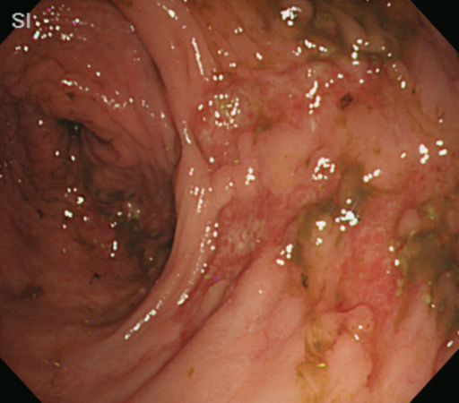 Follow-up colonoscopy demonstrates partial healing of the ulcers in the transverse colon.