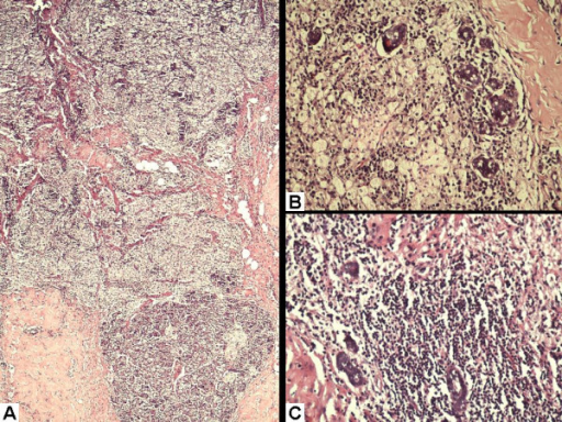Haematoxylin and eosin stained sections showing: (A) Sheets of macrophages infiltrating the lobules and extending into the adjacent stroma. (B) High power view depicting macrophages destroying one of the breast lobules. Only a few acini are preserved. (C) Lymphocytic aggregate within the lobule.