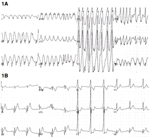Electrocardiogram before (1A) and after (1B) electrical cardioversion