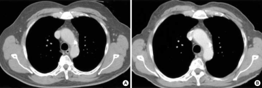Technology can aid in radiation dose reduction. Transverse CT image (224 mAs) (A) of a 44-yr-old man with chronic cough acquired with conventional scanning technique is similar to CT image (112 mAs) (B) acquired with automatic tube current modulation technique (at 50% reduction in radiation dose) in terms of diagnostic quality.