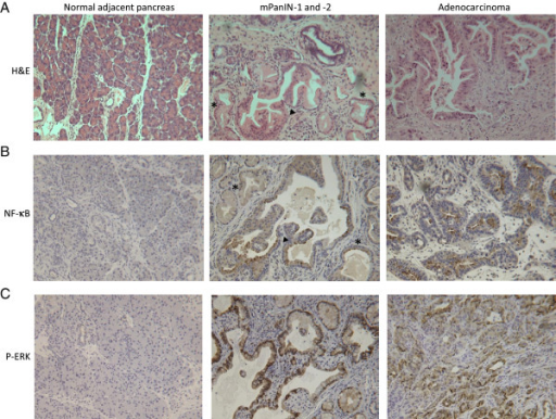 Pancreas histology and expression of NF-κB and P-ERK. A) H&E. Representative sections of normal adjacent pancreas upon sacrifice at day 219 [d219]), mPanIN-1 (asterisk) and −2 (black arrowhead) at d271, and pancreatic ductal adenocarcinoma at d258 are shown (200X magnification). B) NF-κB. Pancreatic tissue sections were immunostained with a NF-κB specific antibody. Representative images of normal adjacent pancreas at d231, mPanIN-1 (asterisk) and −2 (black arrowhead) at d226, and adenocarcinoma at d239 are shown (200X magnification). NF-κB is expressed in mPanINs and tumor cells (brown). C) P-ERK. Positive P-ERK staining (brown) was localized to the mPanINs (d226) and tumor cells (d295) but was absent in normal adjacent pancreas (d226) (200X magnification).