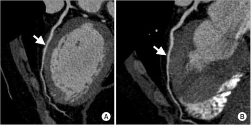 Coronary CT angiography reveals high-grade myocardial bridging (arrow) in the mid-segment of the left anterior descending coronary artery. (A) Coronal view, (B) axial view.