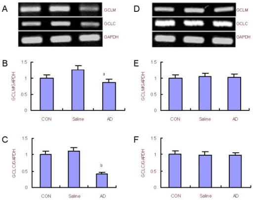 Changes in glutamate cysteine ligase catalytic subunit (GCLC) and glutamate cysteine ligase modulatory subunit (GCLM) mRNA expression in the rat cerebral cortex and hippocampus.(A) RT-PCR analysis for mRNA expression of GCLM and GCLC in the cerebral cortex; (B, C) quantification of GCLM and GCLC mRNA expression in the cerebral cortex compared with the control (CON) group (adjusted as 1.0).(D) Reverse transcription-PCR analysis for mRNA expression of GCLM and GCLC in the hippocampus; (E, F) quantification of GCLM and GCLC mRNA expression in the hippocampus compared with the control group (adjusted as 1.0).GAPDH was used as an internal standard. aP < 0.05, bP < 0.01, vs. control group (one-way analysis of variance followed by Dunnett's t-test). The assay was performed three times and data were expressed as mean ± SD.