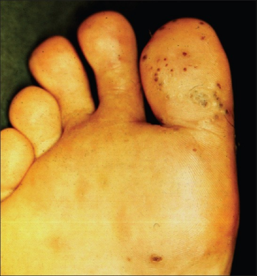 Plantar warts before treatment